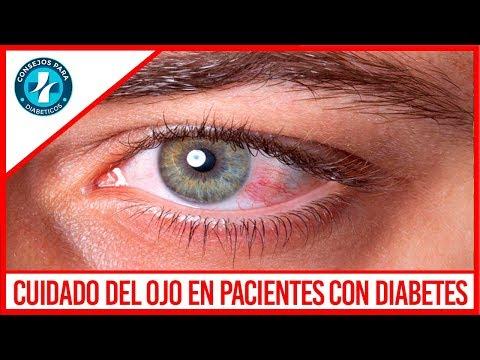 Cuidados importantes en los ojos en pacientes con diabetes