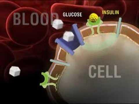 What is Type 2 Diabetes?