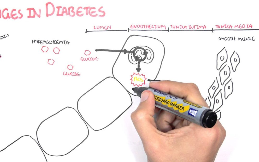 Diabetes Complication and Pathophysiology of the complication