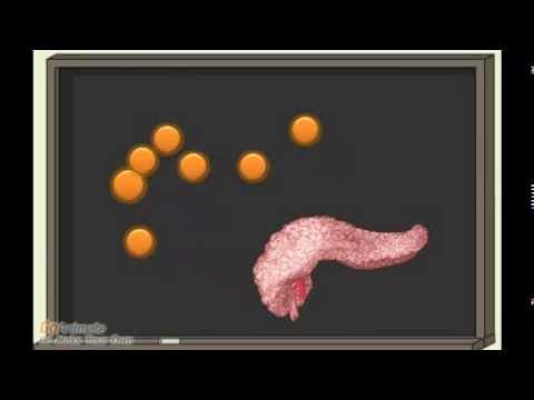 Type 2 Diabetes: Understanding the Link Between Obesity & Type 2 Diabetes