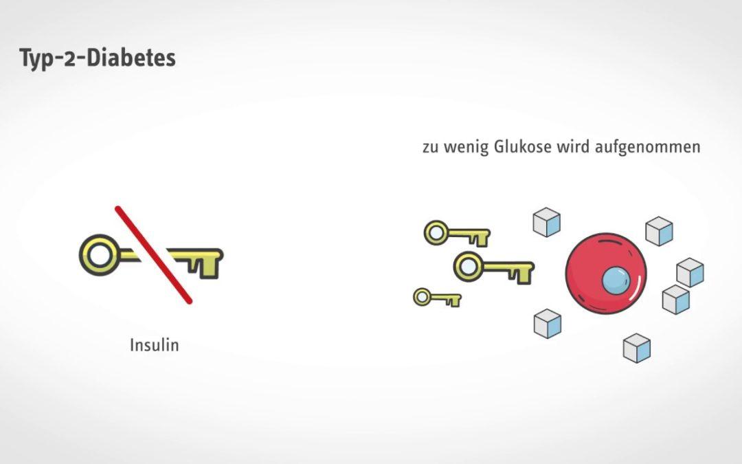 Kurz und verständlich: Was passiert bei Diabetes?