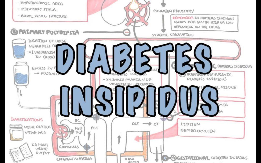 Diabetes Insipidus – Overview (causes, pathophysiology, investigations)