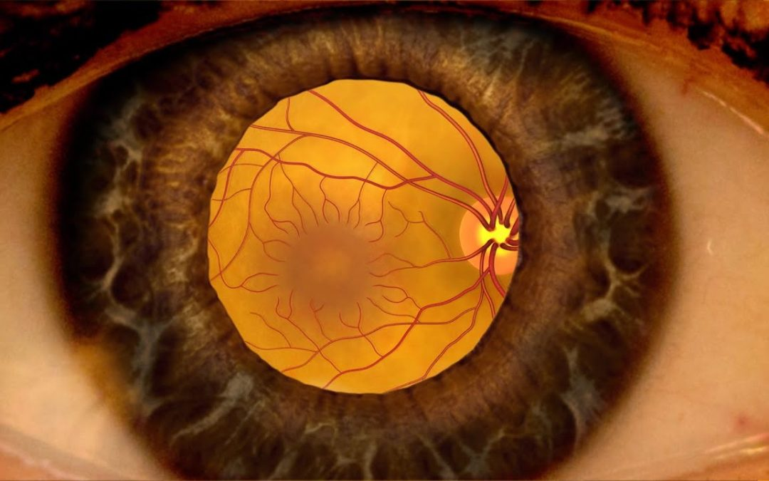 Animation: Detecting diabetic retinopathy through a dilated eye exam