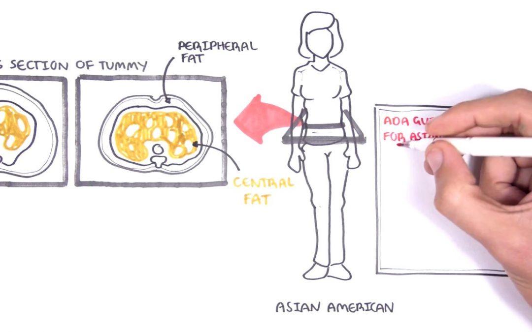 ADA New Diabetes Screening Guidelines